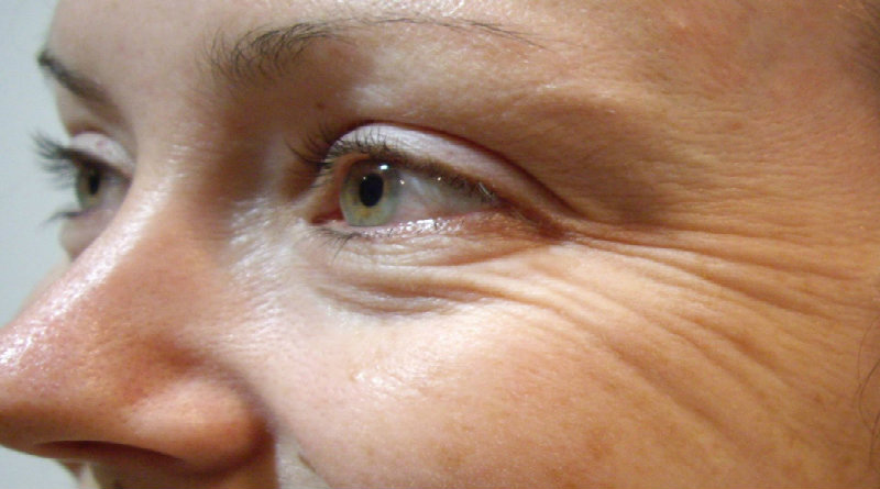 tips-to-prevent-early-wrinkles