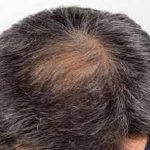Baldness, premature greying may up heart disease risk in men